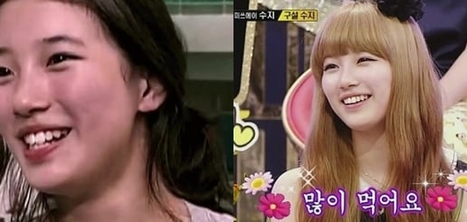 Pictures Of Suzy S Before And After Teeth Lamination Show