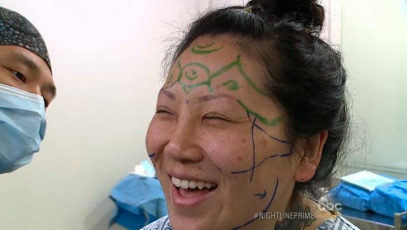 'ABC Nightline' covers 'South Korea's Obsession With Plastic Surgery'