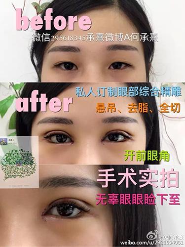 Девушка 8 лет делала пластические операции, чтобы стать похожей на актрису Фань Бин Бин